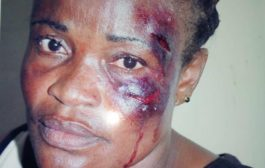 NPP Polling Station Executive Fights For Justice After MP's Boy Brutalized Her