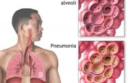 Young Children And Adults Above 65years Are Most Prone To Pneumonia