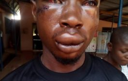 CID Man Brutalizes UEW Student For Chasing His Wife